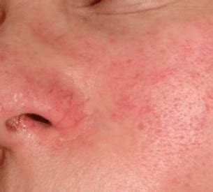 Red Blotches on Skin, Face, Legs, Arms, Patches, under